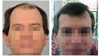 FUE Results Sep 2014 by Dr. Cole