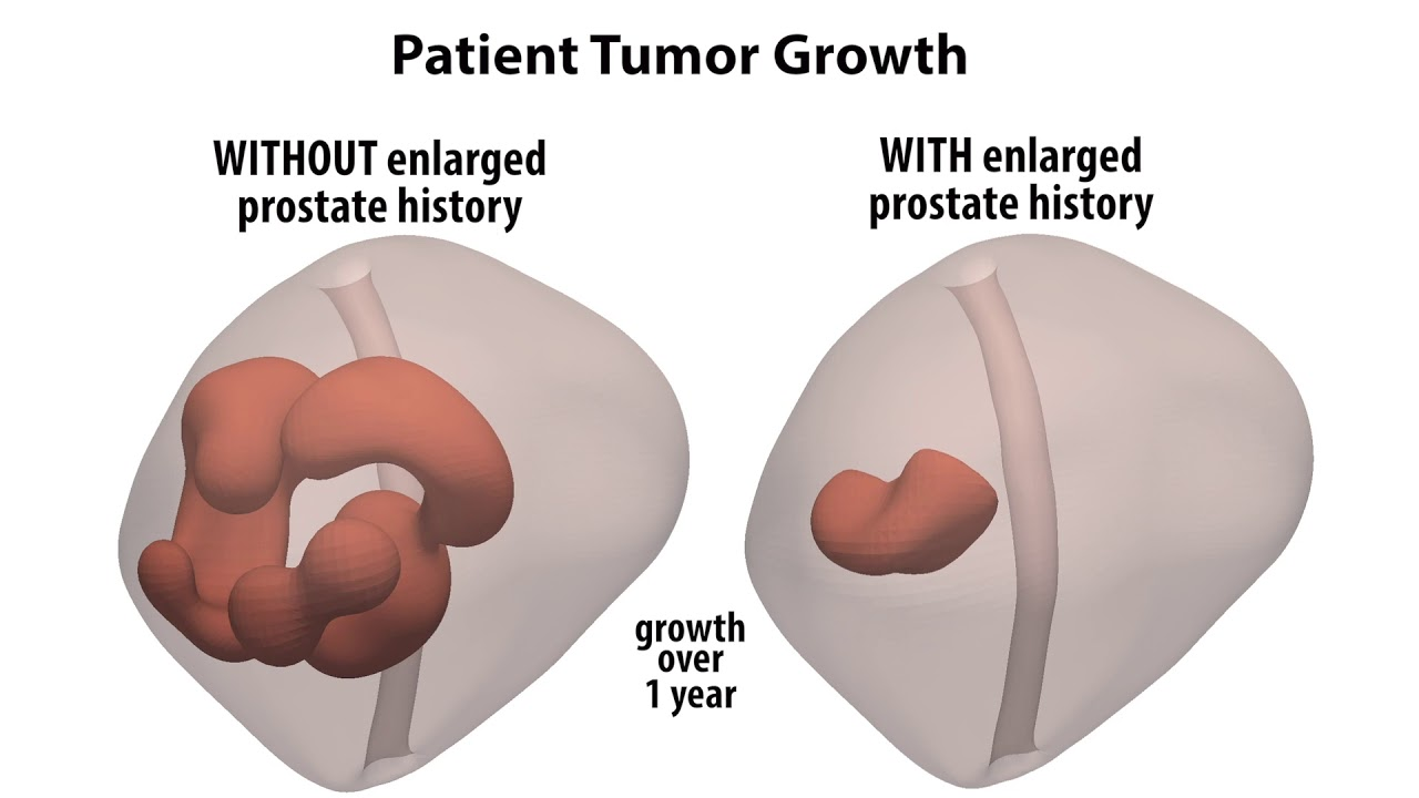 a che età allarga la prostata