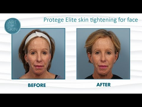 Protege Elite Radiofrequency for Skin Tightening