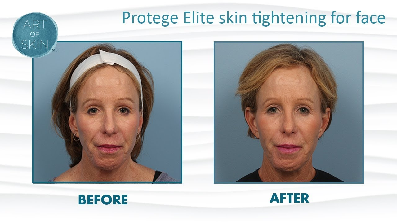 1e834c5132b Protege Elite Radiofrequency for Skin Tightening - YouTube