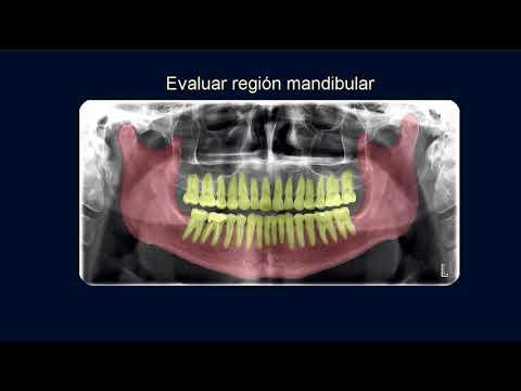 Regiones a interpretar en la radiografía panorámica - YouTube