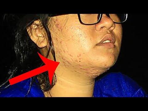 Gara-Gara Pakai Jafra Skin Care