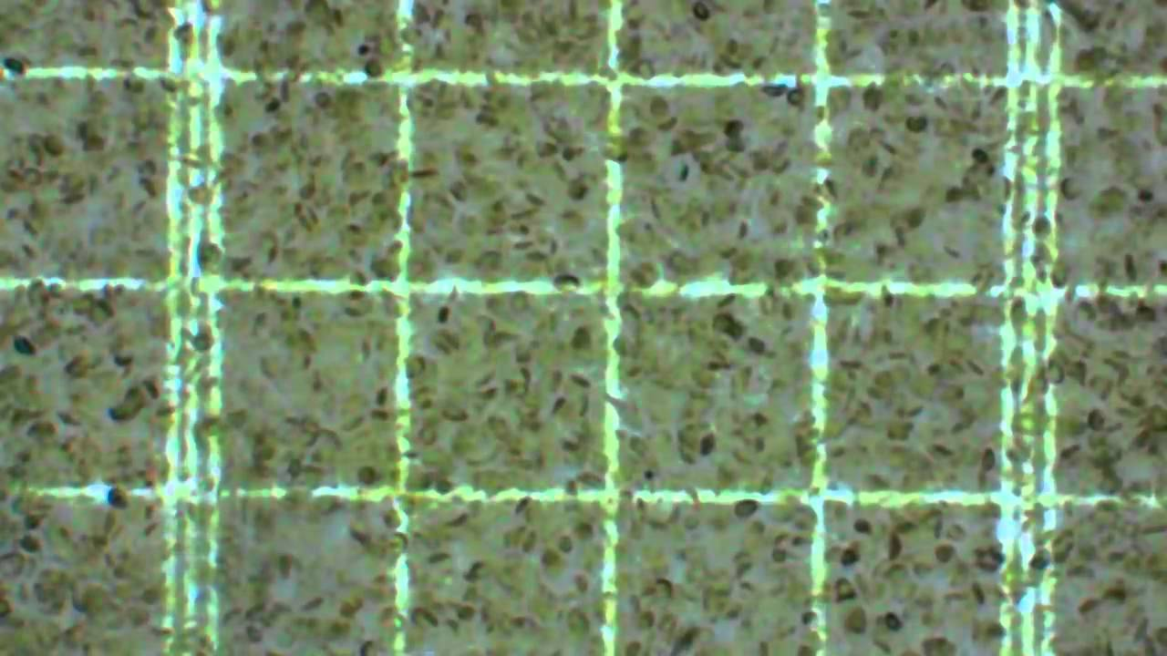 Chloroplasts Isolated From Spinach 400x
