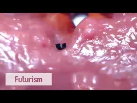 Tiny Robot Works Inside Human Body - YouTube