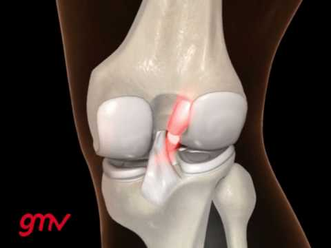 ACL injury in sports