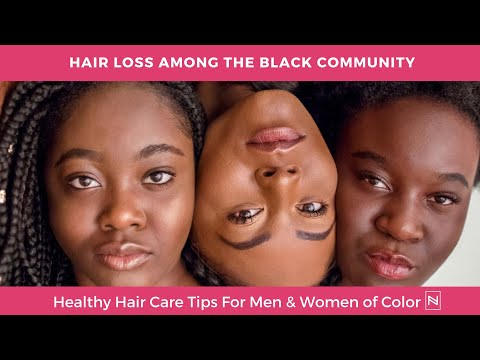 Hair Loss In Black Women | Hair Loss Treatment For Women | Hair Loss Women