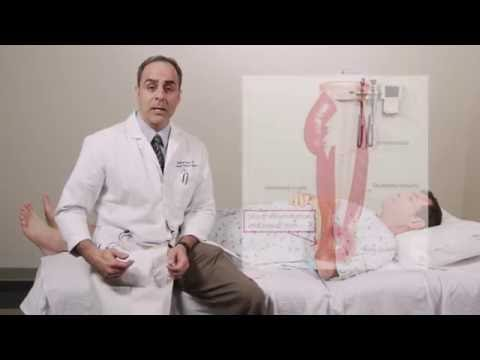 Iliotibial Band Syndrome Physical Exam - Stanford Medicine 25