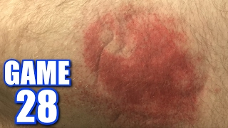 I TOOK A LINE DRIVE TO THE LEG! | Offseason Softball League | Game 28