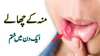 Muh Ke Chalo Ka Ilaj   Mouth Blisters Causes and Treatment In Urdu