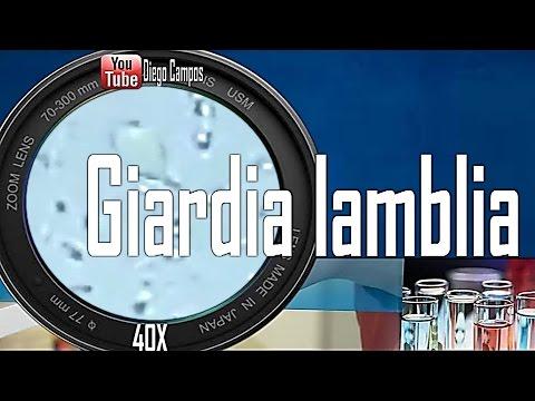 Giardia lamblia (Giardiasis) - Trofozoitos y quistes