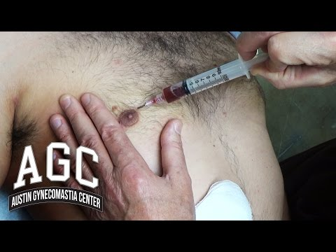 Seroma Formation After Gynecomastia Treatment: What You Need To Know To Avoid It and Treat It