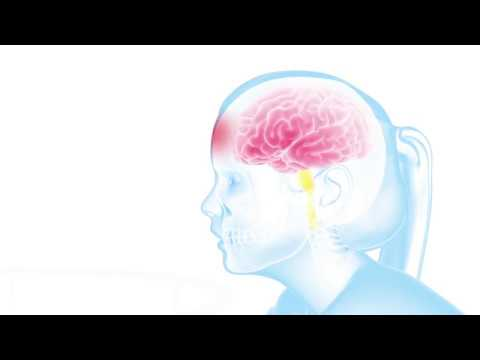 First aid for a baby or child who has a head injury