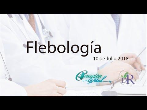 Flebología 10 de Julio 2018