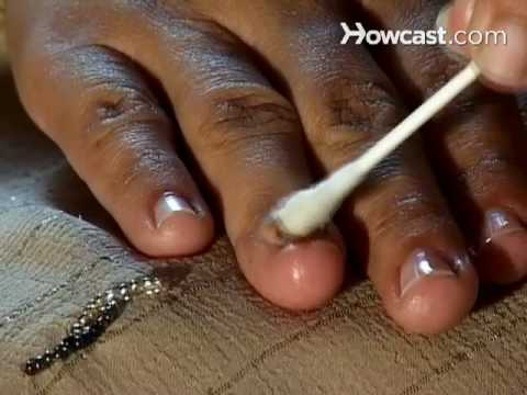 Treat nail fungal infection home