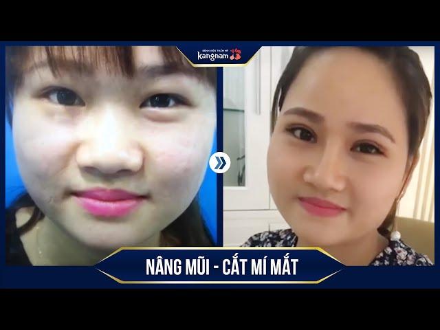 Kết quả hình ảnh cho site:catmimat.com