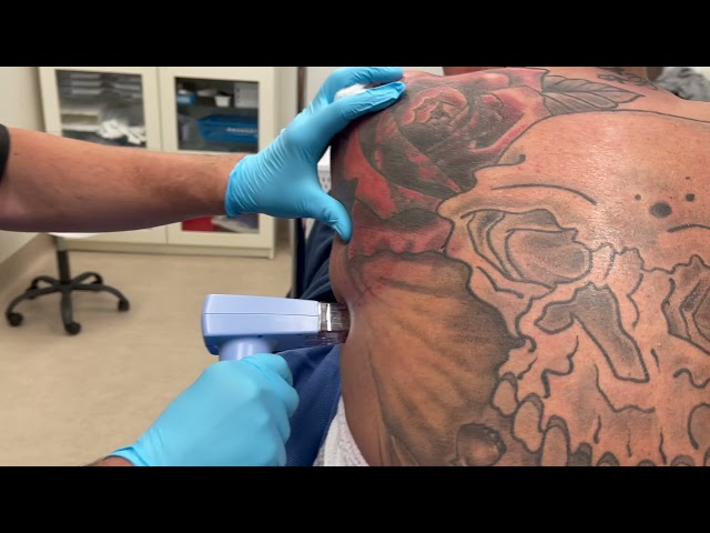 Quick BodyTite + Morpheus8 with Dr. John Burroughs at Springs Aesthetics, in Colorado Springs