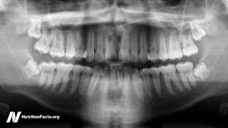 Jak léčit zánět ozubice (periodontitidu) stravou