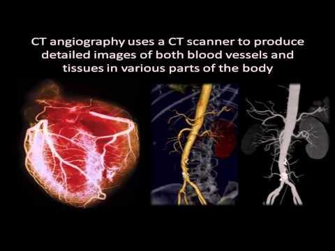 CTA - Computed Tomography Angiography