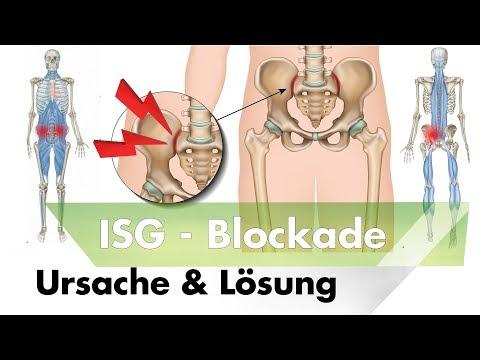 ISG Blockade | Symptome, Ursachen & Lösung durch Training