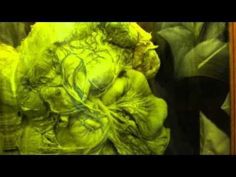 Anatomy   Veins1