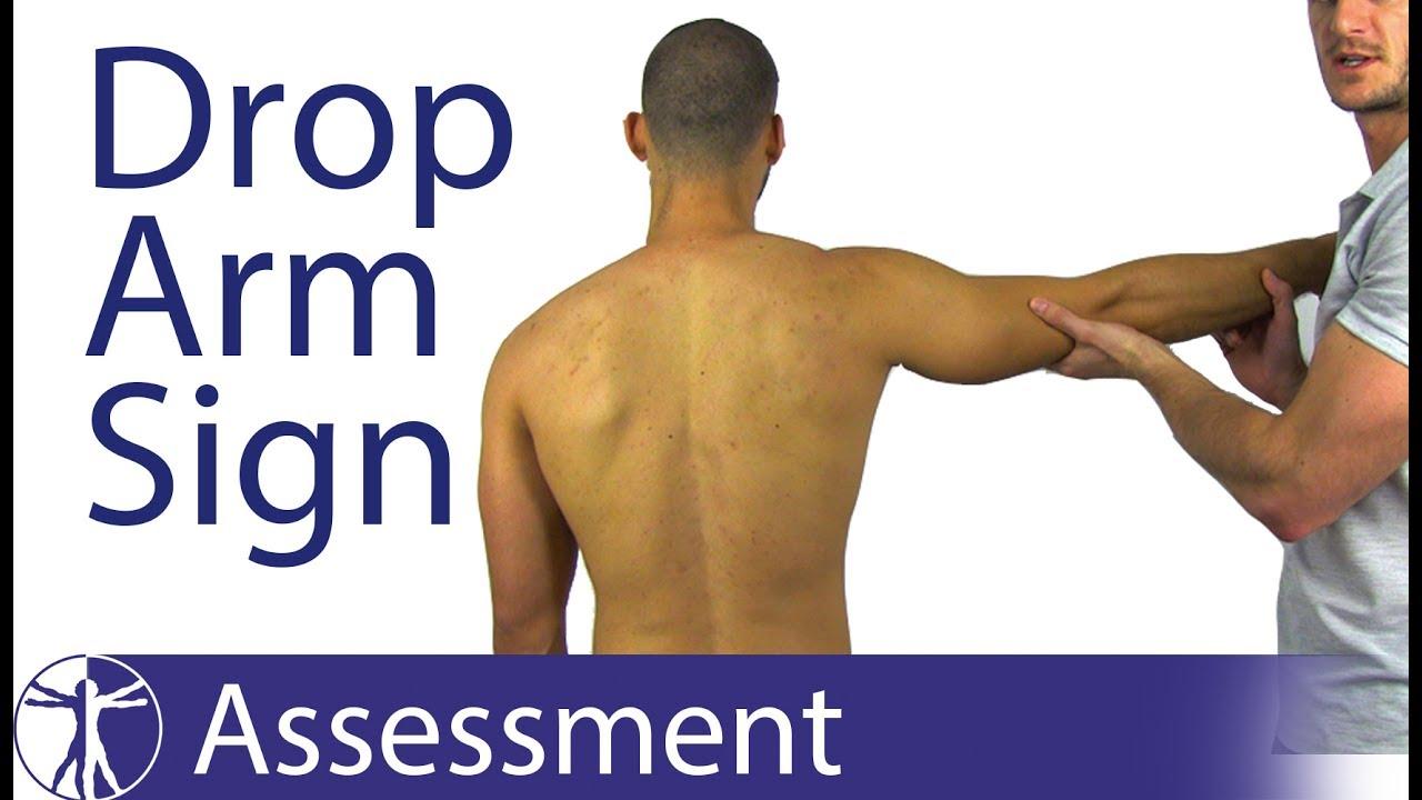 Drop Arm Test Sign Supraspinatus Tear Youtube
