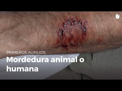 tratamiento mordedura humana