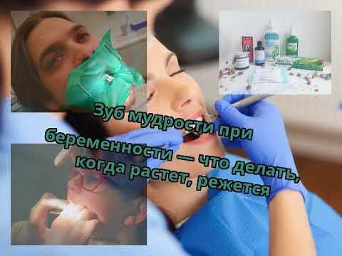 Болит десна лезет зуб мудрости что делать при беременности