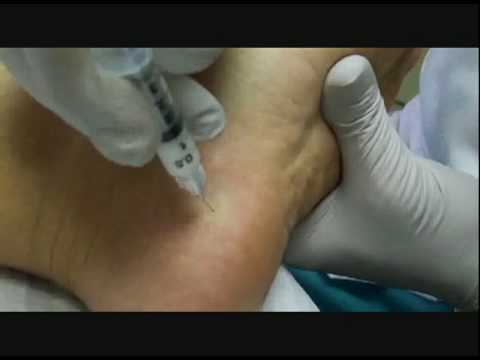 plantar fasciitis steroid injection technique
