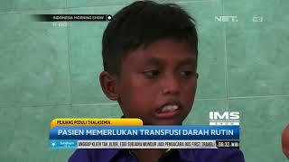 Sekitar 250 anak tercatat sebagai penderita Thalassemia di Provinsi Aceh, angka yang dinilai sebagai.