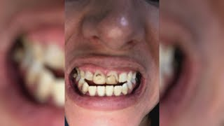 Nurse Returns to Show Off Her Brand-New Smile