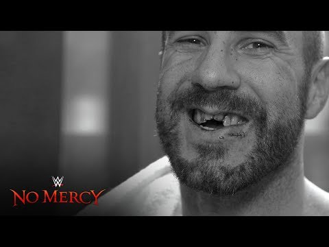 Cesaro receives stitches ahead of emergency dental work: WWE No Mercy Exclusive, Sept. 24, 2017