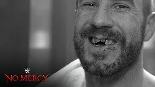 Cesaro receives stitches ahead of emergency dental work WWE No Mercy Exclusive Sept 24 2017