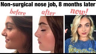 Non-Surgical Nose Job 8 Months Later + Permanent Filler   Before and After