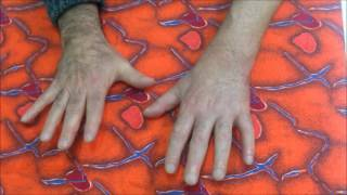 Видео Усманов Артур - результат реабилитации после микрохирургической операции