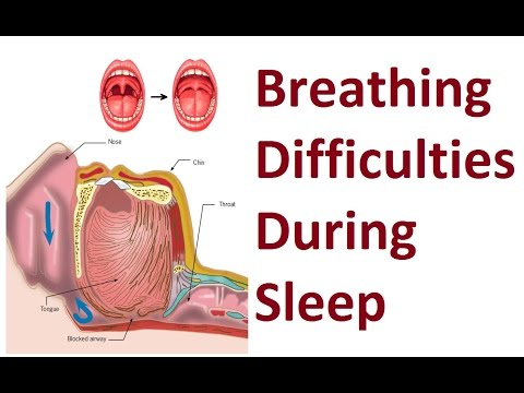 Methods to Improve Breathing Difficulties During Sleep by Prof John Mew