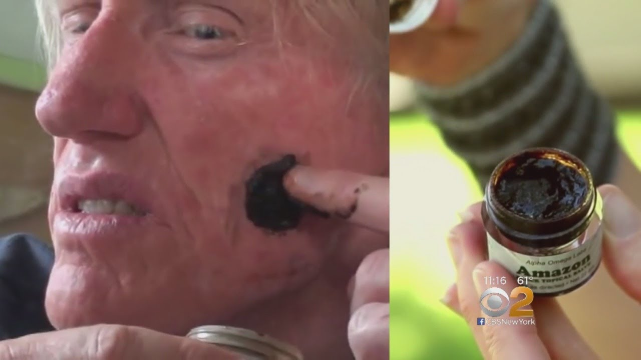Doctors Warn 'Black Salve' Cure For Skin Cancer Is More Ruse Than Remedy