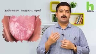 ക്യാൻസർ ഈ ലക്ഷണങ്ങൾ നിങ്ങളിലുണ്ടെങ്കിൽ സൂക്ഷിക്കുക | Cancer Malayalam Health Tips