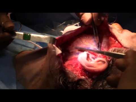 SMAS Facelift Surgery Video by Dr. Philip Miller
