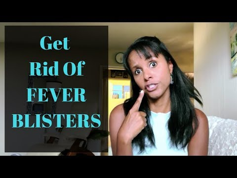 fever-blister-remedies-|-jovanka-ciares