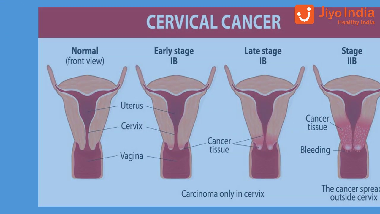What Are The Symptoms Of Gynecologic Cancers