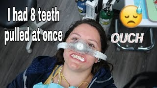 I had 8 teeth extracted in one day | My journey to dentures