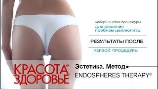 ЭСТЕТИКА. Метод. Эндосфера-терапия (ENDOSPHERES THERAPY®)