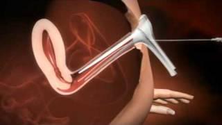 Intrauterine Insemination Kinderwunschbehandling (IUI)