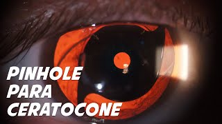 XtraFocus Pinhole for keratoconus