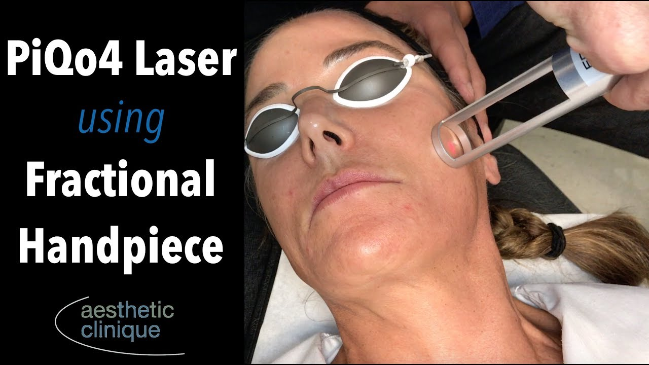PiQo4 Laser Rejuvenation using Fractional Handpiece - YouTube