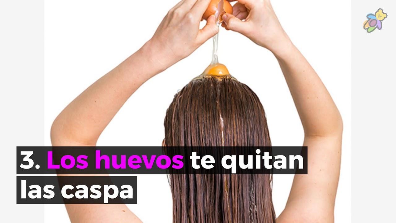 como combatir la caspa del cabello con remedios caseros