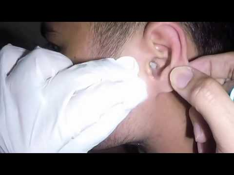 Monster Earwax Removal by Earwax Specialist!