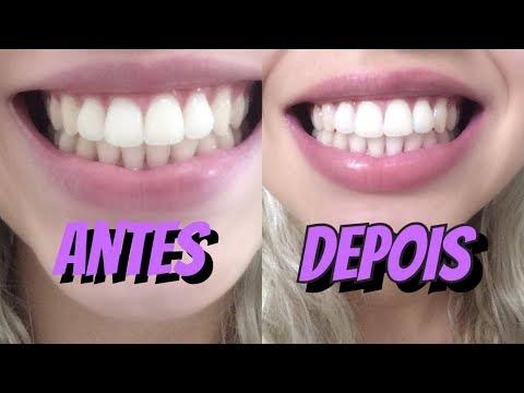 To Rindo Mas To Chorando Clareamento Dental Com Violeta Genciana