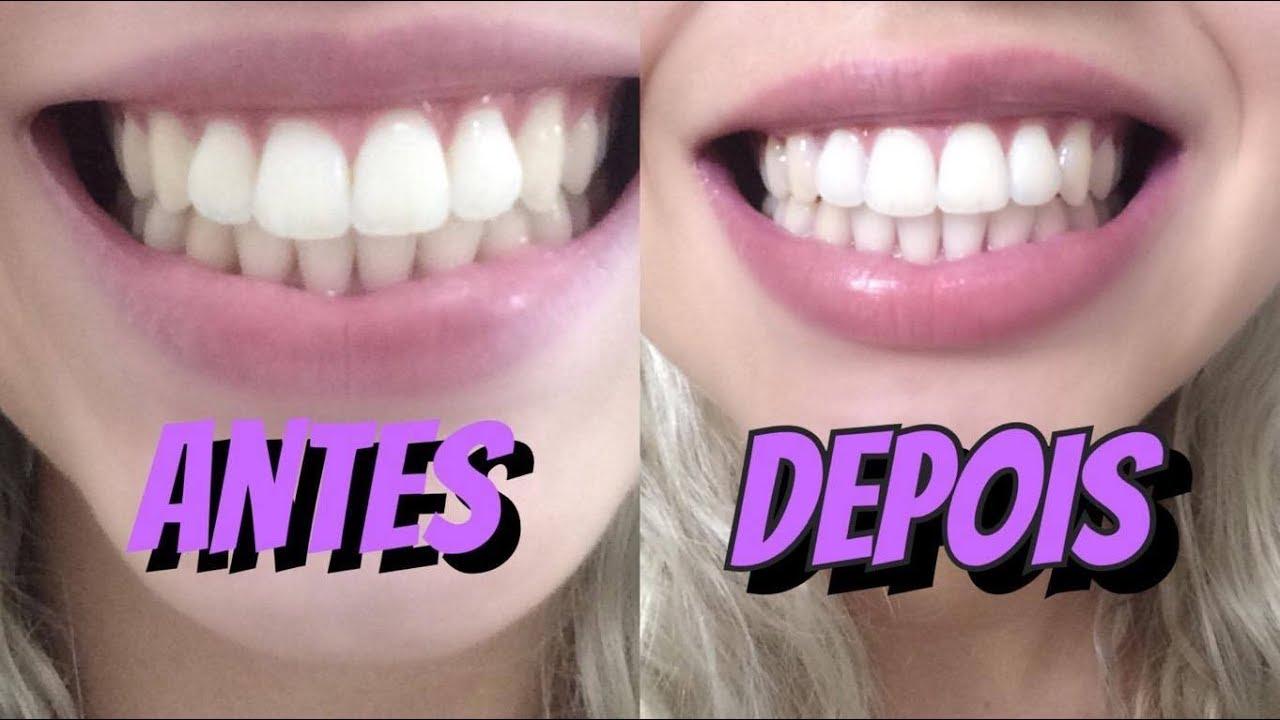 Violeta Genciana Para Clarear Os Dentes Funciona Ou Nao