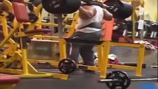 Weight Lifting Accidents Intestines fall out